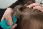 Dealing With Lice